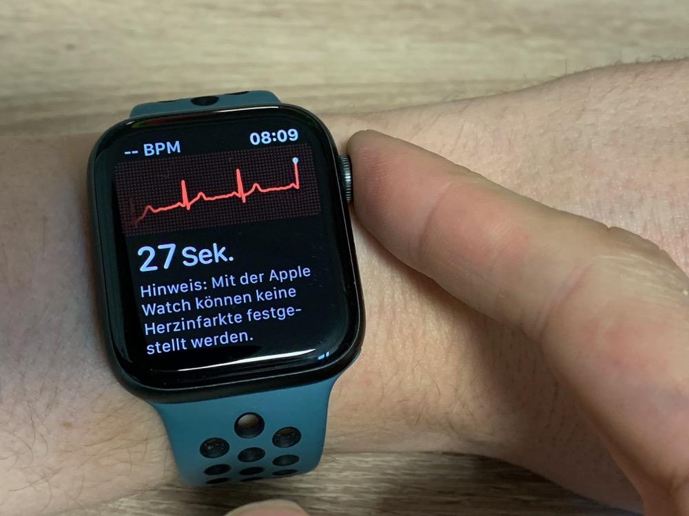 EKG-Messung mit der Apple Watch